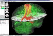 Un aspect du logiciel NeuroPlanning Navigator : on y voit une tumeur, des fibres neuronales en transparence et des outils de mesure.