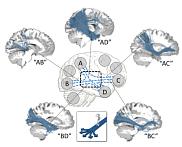 Diagramme démontrant des bouchons de circulation dans le cerveau, vu de plusieurs angles.
