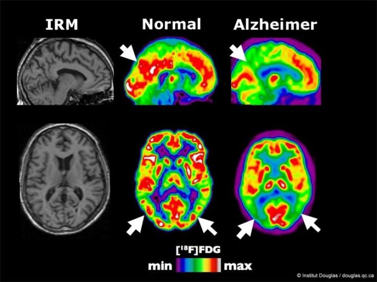 Images de la structure (IRM) et de l'activité (TEP) du cerveau. La maladie d'Alzheimer est associée à une diminution de la consommation de sucre (FDG) dans des régions précises indiquées par les flèches.