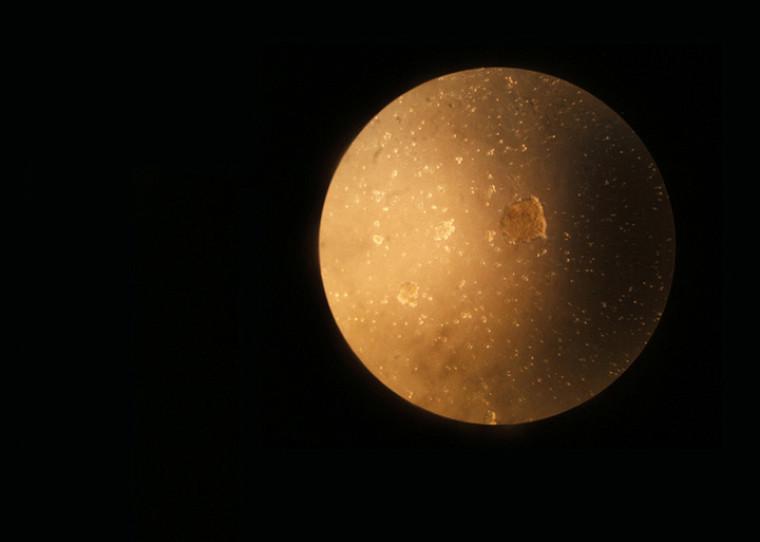 Pas de planète mais des milliers de cellules. Par erreur, l'objectif de l'appareil photo a été mal aligné avec l'oculaire du microscope, ce qui donne une apparence lunaire à cette culture de cellules cancéreuses. Cette image a été retenue par l'Acfas lors du concours en2011.