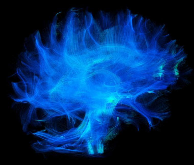 Autoroutes cérébrales, image primée au concours de l'ACFAS.