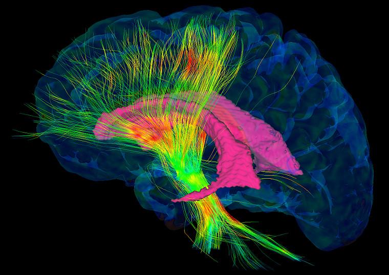 L'alliance entre l'informatique et l'imagerie médicale permet une meilleure précision lors des chirurgies au cerveau.