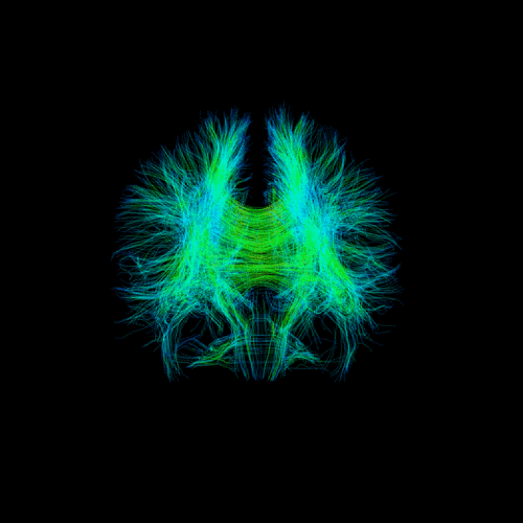 Cartographie par IRM de diffusion des autoroutes intracérébrales d'un cerveau humain.